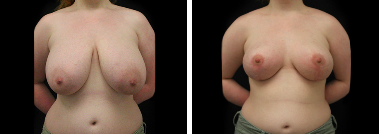 Breast Reduction In Nyc Plasticsurgeonnyc 740 Park Plastic Surgery